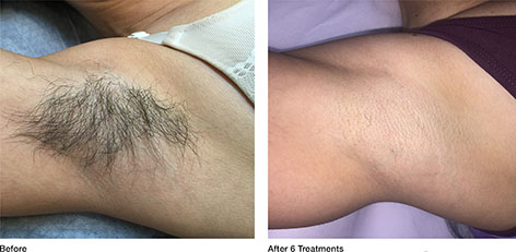 hair removal for men before and after