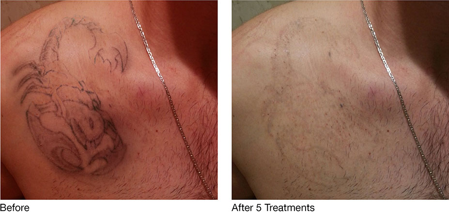 tattoo removal before after